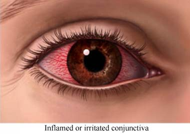 Inflamed or irritated conjunctiva