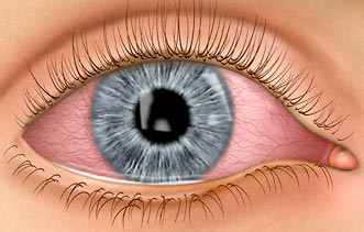 For eye allergies, contact Overland Park Eye Center to speak with an allergy eye care specialist