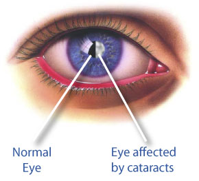 Normal eye vs eye affected by cataracts