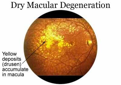 Dry Macular Degeneration