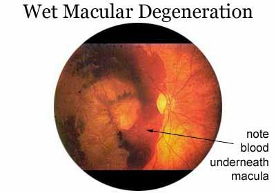 Detecting Macular Degeneration, Overland Park & Kansas City